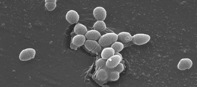 Mycose vaginale : Quels probiotiques ? (PROMO inside !)
